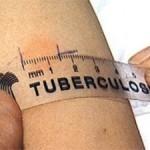 Уровень смертности от туберкулеза на Волыни уменьшился на 30%